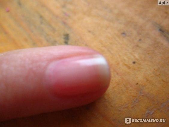 Средство для коррекции неоднородных ногтей Умная Эмаль  фото
