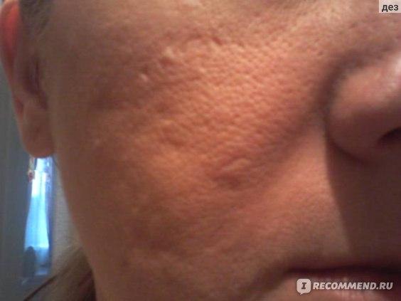 до применения бадяги- с пудрой на лице-п.щека