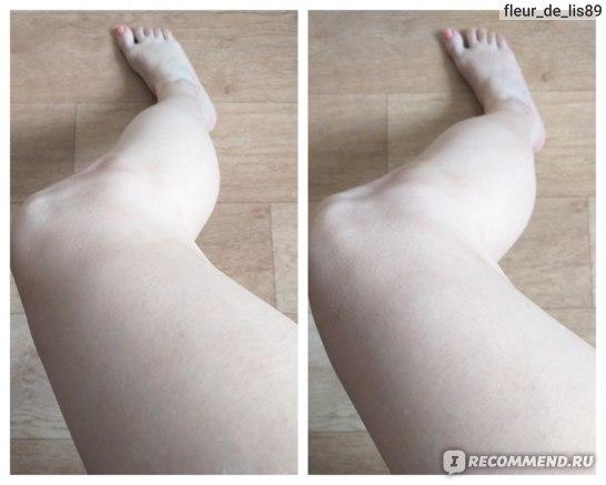 До/ после использования молочка для тела