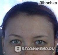 фото до,ближе и четче к сожалению нет)