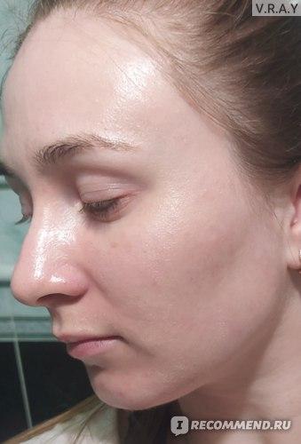 Бальзам на коже, видно небольшой блеск, кожа по ощущениям масляная