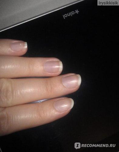 Естественные ногти.