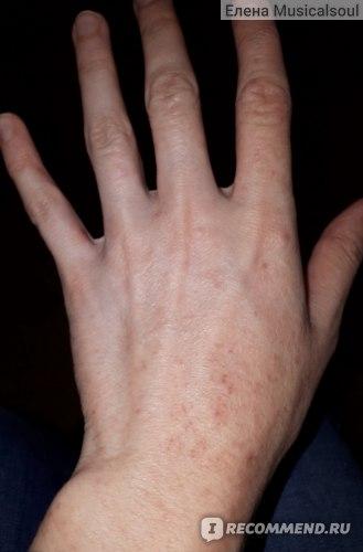 Левая рука после 10 дней цетрина и мороженого))
