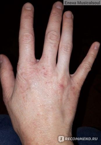 Правая рука после 10 дней цетрина и мороженого)))