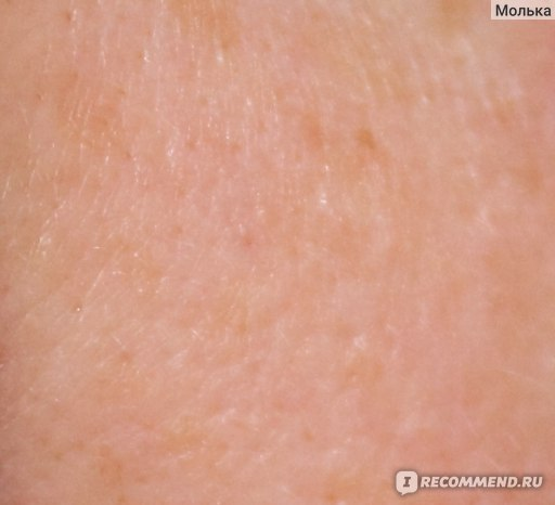 кожа на щеке ПОСЛЕ