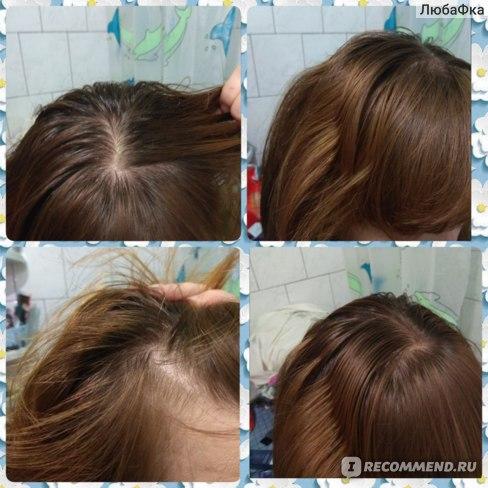 Мой цвет волос ДО окрашивания