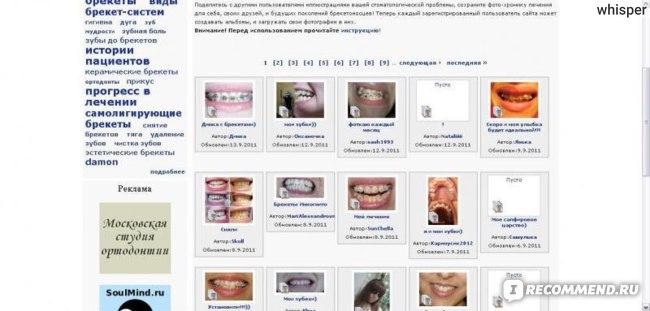Брекет.info фото