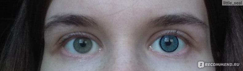 Слева - без линзы,  справа - в линзе