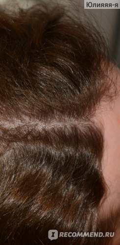 Кожа головы без перхоти, блеск волос имеется