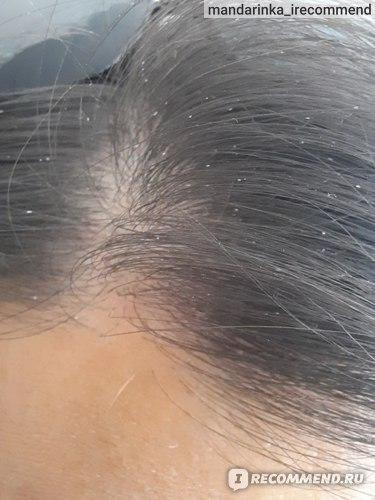 Шампунь Белита-М ОРЕХОВАЯ ТЕРАПИЯ для ослабленных и повреждённых волос фото
