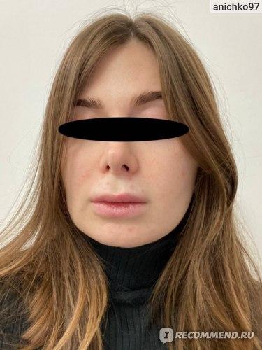 Проколы над губой