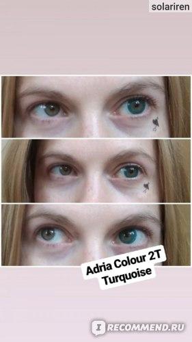 линзы Adria фото до и после