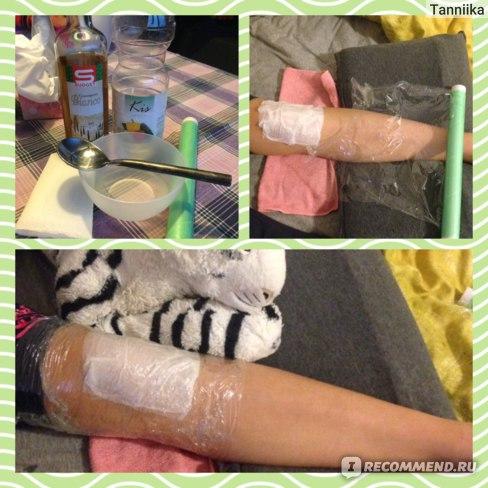 Изображение - Ортез коленного сустава при шляттера B1QUoy8fqBgg9CwvmBG3ng