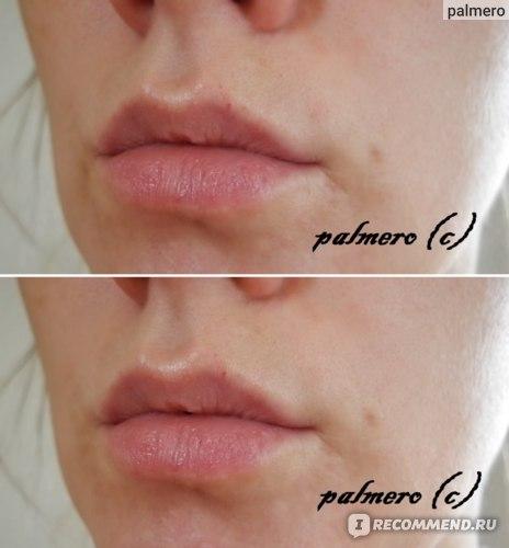 Мазь Ям Фарматон для лечения заболеваний кожи фото