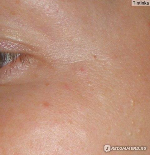 3 день после уколов, здесь видны мимические у глаз