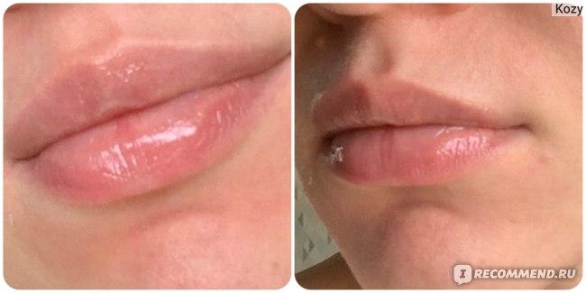 После процедуры и нанесения бальзама для губ