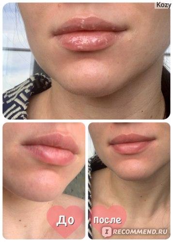 Сахарный скраб для губ Neo Care «Sugar Baby» на губах, фото ДО/ПОСЛЕ