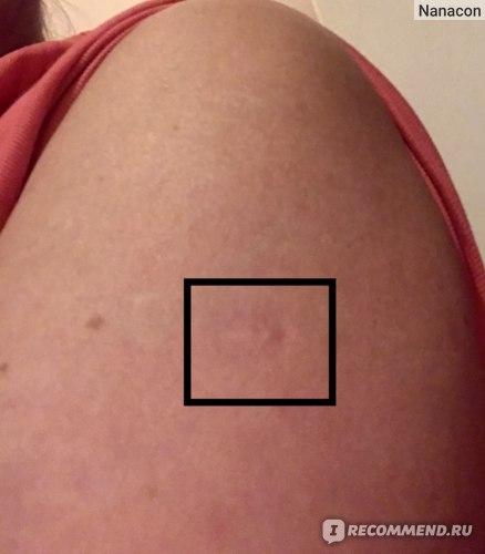 Вакцина от коронавируса AstraZeneca / Oxford CoviShield / Vaxzevria фото