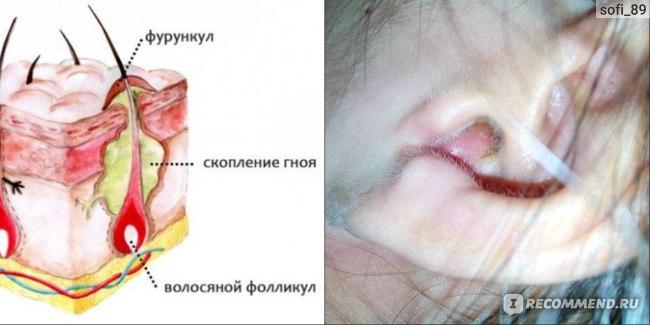 фурункул в ухе