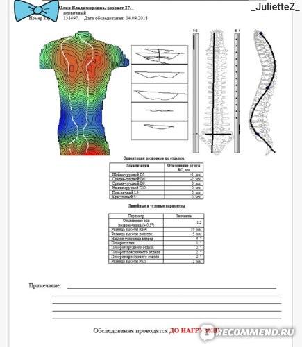 Компьютерная диагностика осанки (КОД) фото