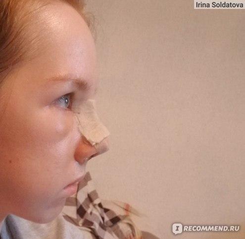 Я и мой задранный нос с отеком