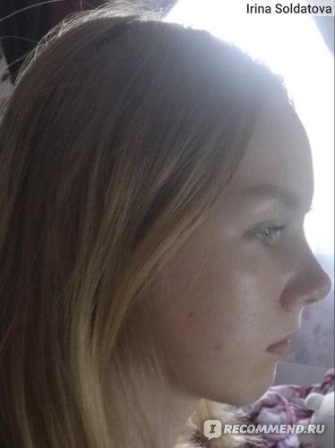 Нос на данный момент, в профиль - супер