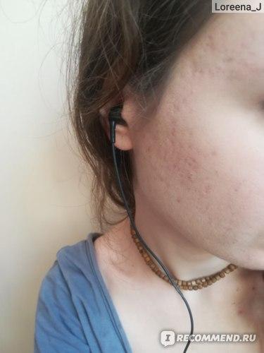 Спустя два месяца после использования крема