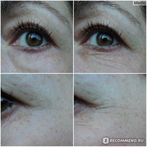 Аргирелин Aliexpress Argireline peptide solution and anti wrinkle anti wrinkle anti-aging remove crow's feet wrinkles 6 peptids free shipping фото