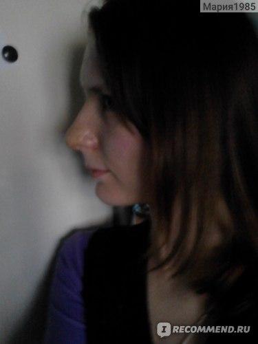Фото после снятия гипса