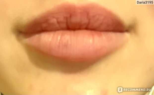 Вот тут видно, что верхняя губа стала как тряпочка, из-за сильного уменьшения (всё-таки там больше всего было геля). На нижней нужно ещё убирать.