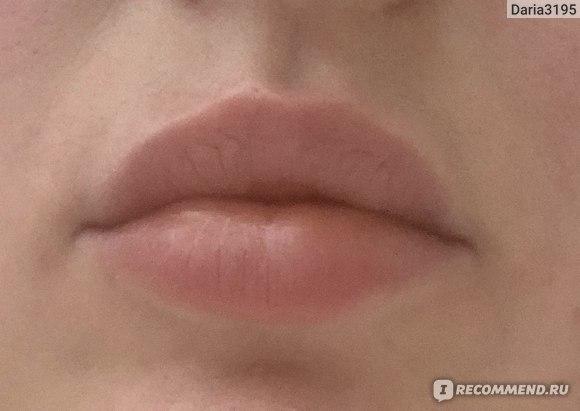 Спустя неделю губы выглядели так. Это до процедуры.