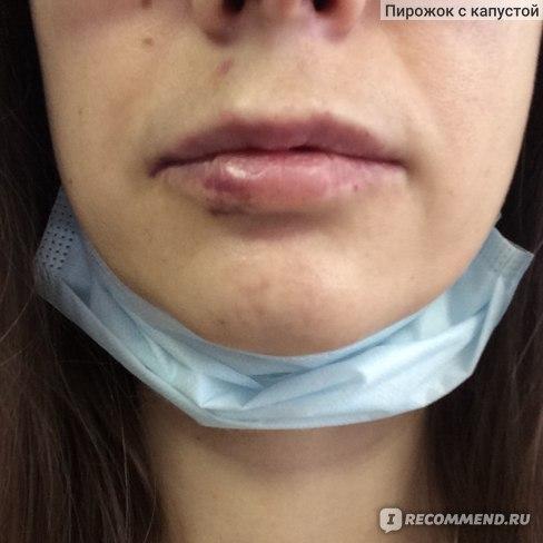 Филлер для губ Medicin/doctor Perfectha derm 1 ml фото
