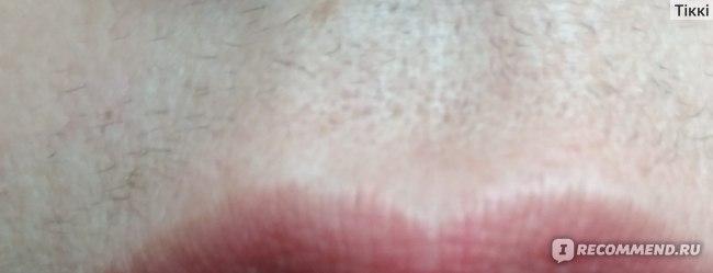 Ручной эпилятор- пружинка для лица 3 в 1