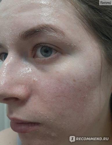 Гель-пилинг для лица Plazan с фруктовыми кислотами фото