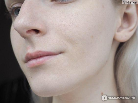 Тоник Sharova Анти-акне с азелаиновой кислотой  фото