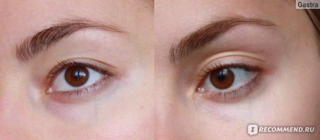 Активный ингредиент Haloxyl Галоксил - «Галоксил - компонент для уменьшения темных кругов под глазами, который действительно работает