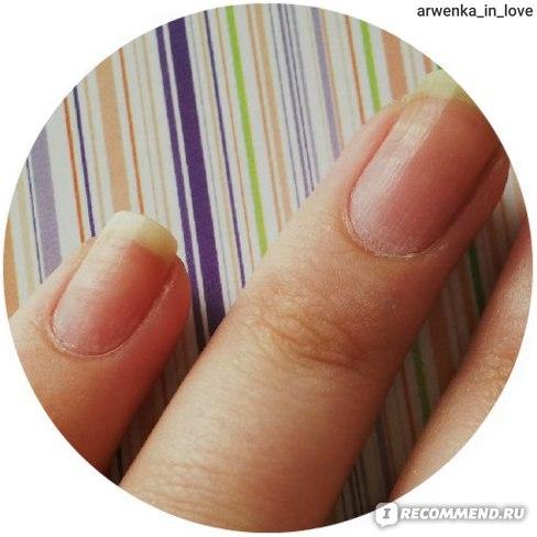 Средство для снятия лака Умная Эмаль КОМПЛЕКС укрепления ногтей фото