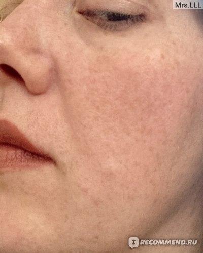 Маска для лица Kedma Diamond age defying Triple Action Collagen Mask фото