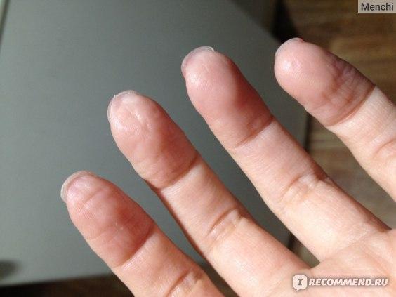 мои измученные пальчики после отмачиваний