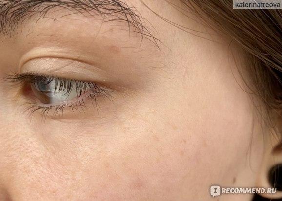 Кожа вокруг глаз после применения