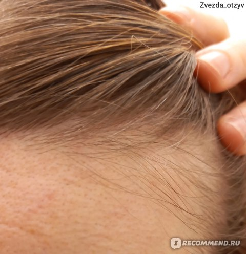 На снимке видны седые волосы. Левая сторона.
