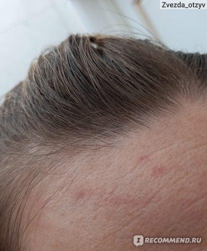 На снимке видны седые волосы. Правая сторона.