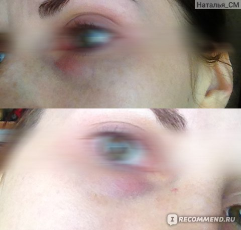 Перманентный макияж темных кругов под глазами фото