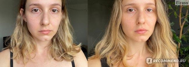 до и после (1 неделя) без макияжа