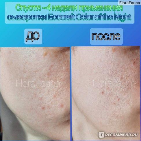 8  Сыворотка для лица ECOCRAFT Для жирной и проблемной кожи с витаминами и гиалуроновой кислотой