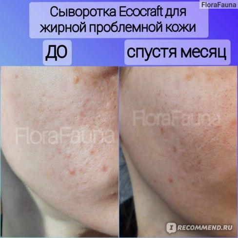 10 Сыворотка для лица ECOCRAFT Для жирной и проблемной кожи с витаминами и гиалуроновой кислотой