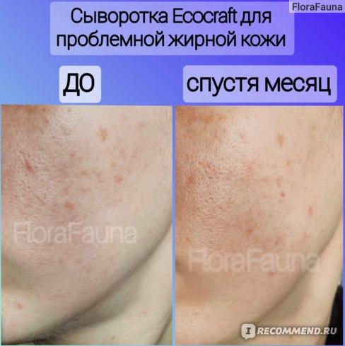 11 Сыворотка для лица ECOCRAFT Для жирной и проблемной кожи с витаминами и гиалуроновой кислотой