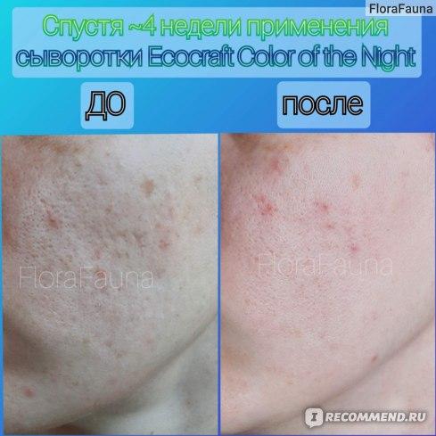 9  Сыворотка для лица ECOCRAFT Для жирной и проблемной кожи с витаминами и гиалуроновой кислотой