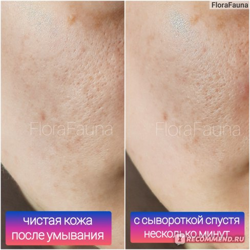 7 Сыворотка для лица ECOCRAFT Для жирной и проблемной кожи с витаминами и гиалуроновой кислотой