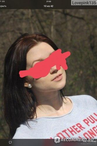 Пятый месяц приёма Диане,ни одного воспаления на лице